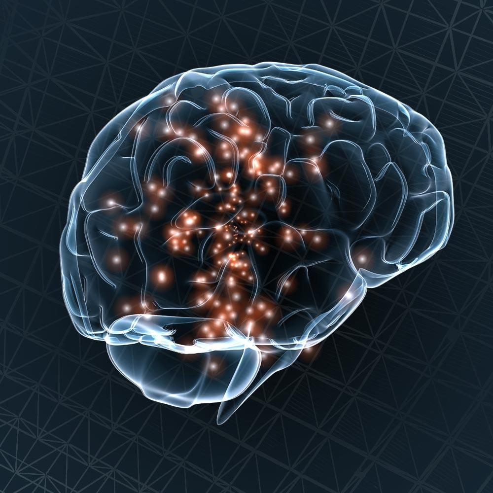 Brain XRay Habits